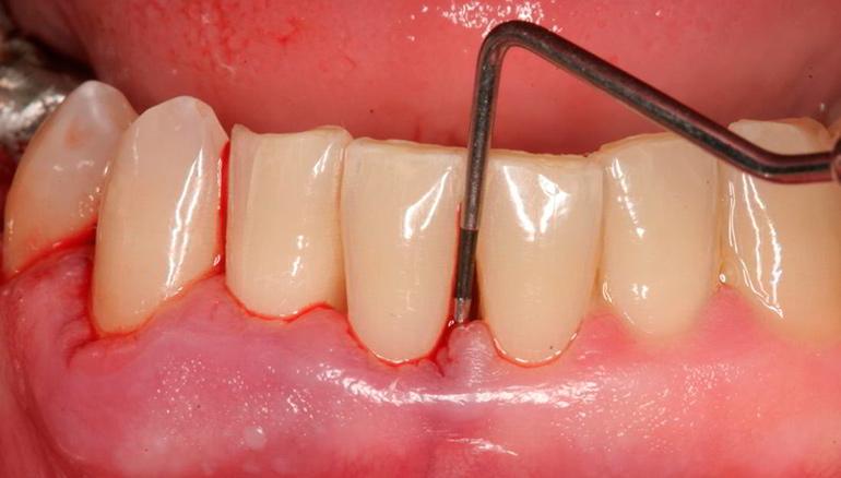 Лечение пародонтита в домашних условиях — мази, гели и зубные пасты