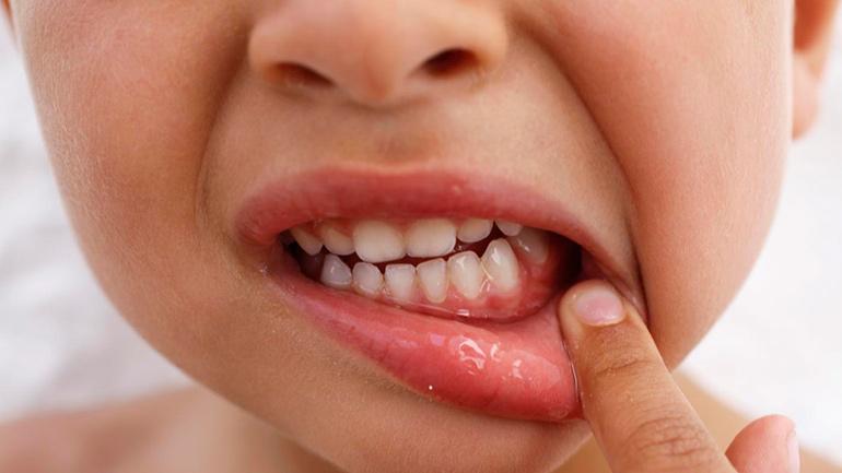 Зубы молочные 4 пародонтит