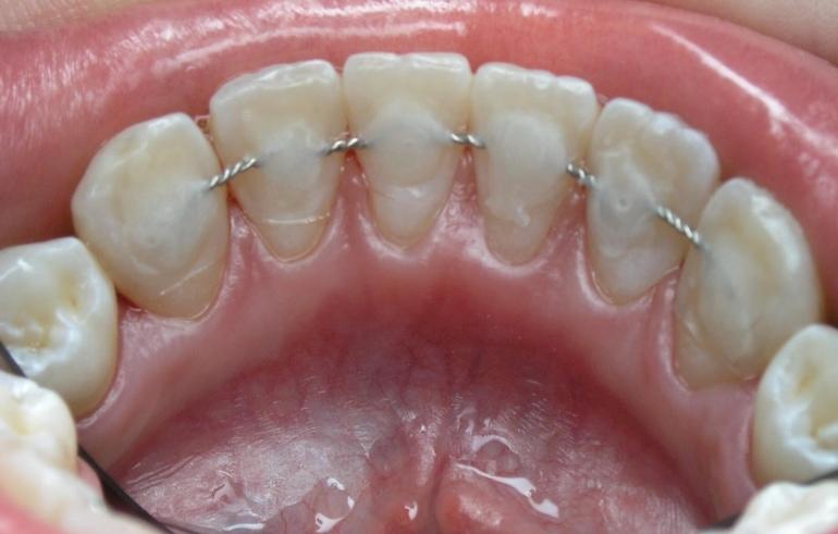 Зубы после шинирования