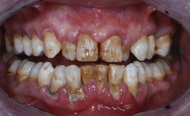 Зубной камень и пародонтит