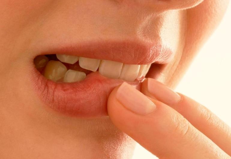Язвенный стоматит у взрослых: формы, симптомы и лечение