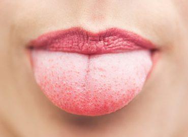 Кандидозный стоматит: что представляет собой и как лечится?