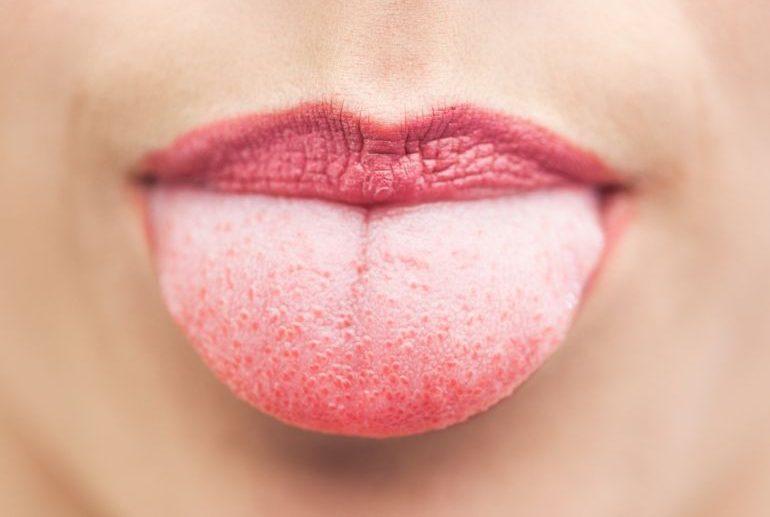 Язык с симптомами кандидоза